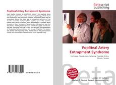Bookcover of Popliteal Artery Entrapment Syndrome