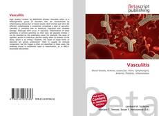 Обложка Vasculitis