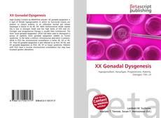 Bookcover of XX Gonadal Dysgenesis