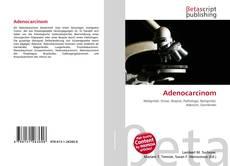Bookcover of Adenocarcinom