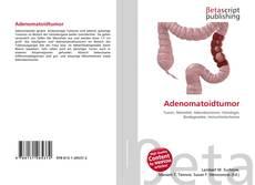Bookcover of Adenomatoidtumor
