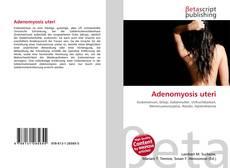 Copertina di Adenomyosis uteri