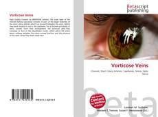 Bookcover of Vorticose Veins