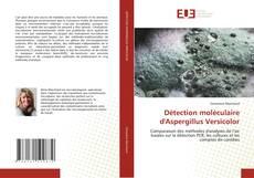Обложка DÉTECTION MOLÉCULAIRE D''ASPERGILLUS VERSICOLOR