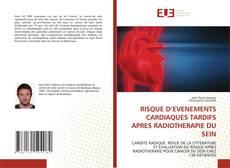 Couverture de RISQUE D''EVENEMENTS CARDIAQUES TARDIFS APRES RADIOTHERAPIE DU SEIN