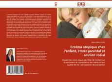Bookcover of Eczéma atopique chez l''enfant, stress parental et soutien social