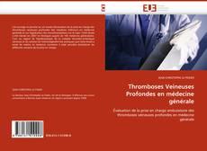 Bookcover of Thromboses Veineuses Profondes en médecine générale