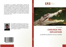 Capa do livro de CHIRURGIE PRE-IMPLANTAIRE