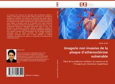 Обложка Imagerie non invasive de la plaque d''athérosclérose vulnérable