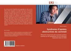 Bookcover of Syndrome d'apnées obstructives du sommeil