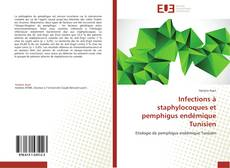 Bookcover of Infections à staphylocoques et pemphigus endémique Tunisien