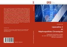 Bookcover of Lipocaline 2 et Néphropathies Chroniques