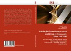Buchcover von Etude des interactions entre protéines et lésions de l''ADN par SPRi