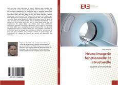 Borítókép a  Neuro imagerie fonctionnelle et structurelle - hoz