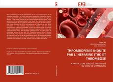 Bookcover of THROMBOPENIE INDUITE PAR L' HEPARINE (TIH) ET THROMBOSE