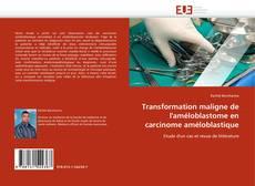 Обложка Transformation maligne de l'améloblastome en carcinome améloblastique
