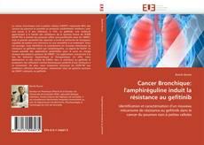 Bookcover of Cancer Bronchique: l'amphiréguline induit la résistance au gefitinib