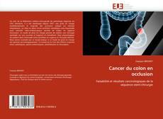Bookcover of Cancer du colon en occlusion
