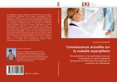 Bookcover of Connaissances actuelles sur la maladie aspergillaire