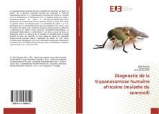 Bookcover of Diagnostic de la trypanosomose humaine africaine (maladie du sommeil)