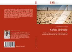 Cancer colorectal的封面