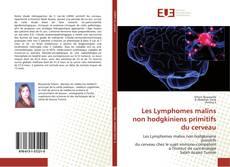 Couverture de Les Lymphomes malins non hodgkiniens primitifs du cerveau