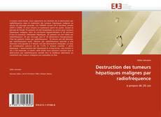 Buchcover von Destruction des tumeurs hépatiques malignes par radiofréquence