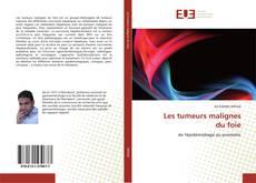 Обложка Les tumeurs malignes du foie