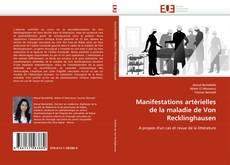 Bookcover of Manifestations artérielles de la maladie de Von Recklinghausen