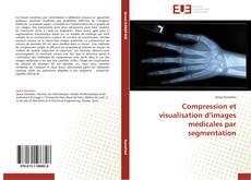 Bookcover of Compression et visualisation d'images médicales par segmentation
