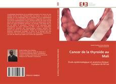 Borítókép a  Cancer de la thyroide au Mali - hoz