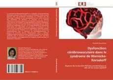 Bookcover of Dysfonction cérébrovasculaire dans le syndrome de Wernicke-Korsakoff