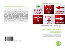 Bookcover of AV nodal reentrant tachycardia