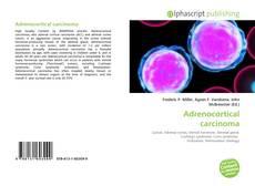 Portada del libro de Adrenocortical carcinoma