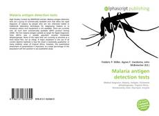 Bookcover of Malaria antigen detection tests