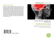 Bookcover of Cerebral aneurysm