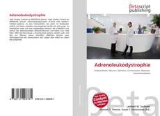 Bookcover of Adrenoleukodystrophie
