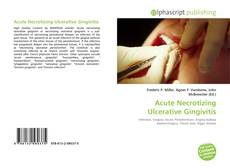 Bookcover of Acute Necrotizing Ulcerative Gingivitis