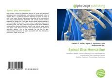 Обложка Spinal Disc Herniation