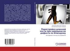 Обложка Перестройка длинной кости при замещени ее дефекта по Илизарову