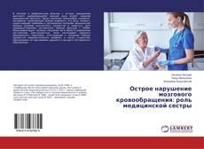 Bookcover of Острое нарушение мозгового кровообращения: роль медицинской сестры
