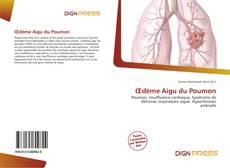 Bookcover of Œdème Aigu du Poumon