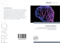 Bookcover of Cerebral Edema