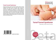 Bookcover of Tarsal Tunnel Syndrome