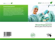 Bookcover of Breast Engorgement