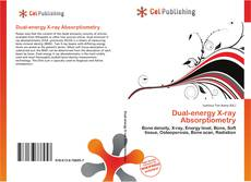 Bookcover of Dual-energy X-ray Absorptiometry