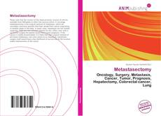 Bookcover of Metastasectomy