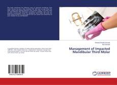 Bookcover of Management of Impacted Mandibular Third Molar