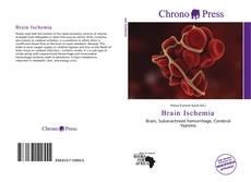 Buchcover von Brain Ischemia