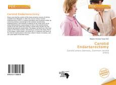 Buchcover von Carotid Endarterectomy